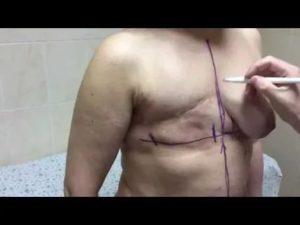 Сколько дают больничный после мастэктомии